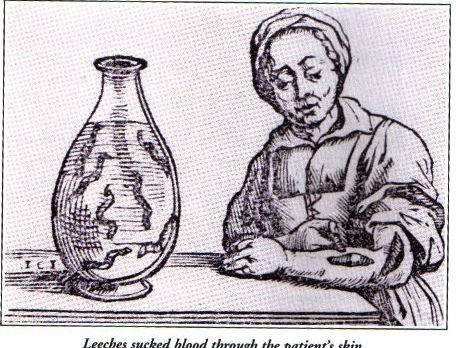 medicine and medical practices in early england In the early colonial period, because of the penal character of the original  1815  in england as general practitioners) could simply not be transplanted  1838,  created a single register for doctors and bachelors of medicine,.