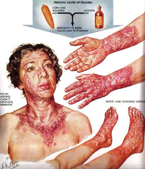 lack of beriberi Beriberi: beriberi is a disease in which the body does not have enough thiamine (vitamin b1) those people with most risk of getting the disease are alcoholics those people with most risk of getting the disease are alcoholics.